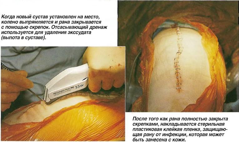 Закрытие раны