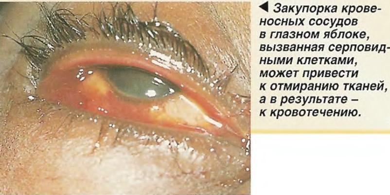 Закупорка кровеносных сосудов в глазном яблоке