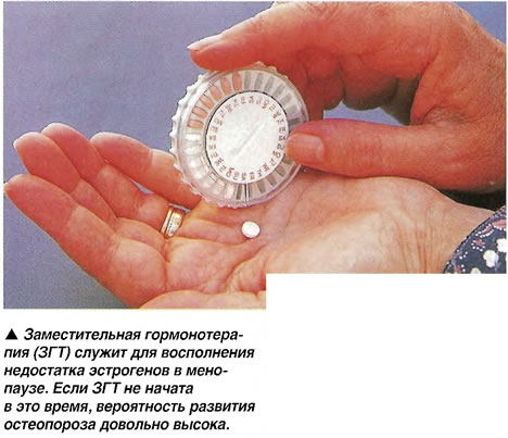 Заместительная гормонотерапия