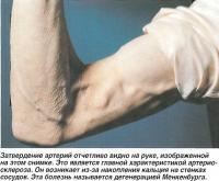 Затвердение артерий отчетливо видно на руке