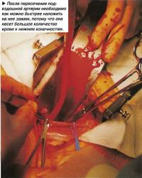 Зажим артерии