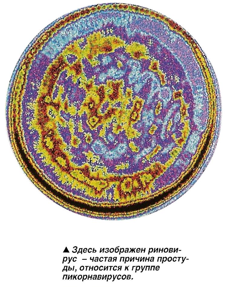 Здесь изображен риновирус - частая причина простуды