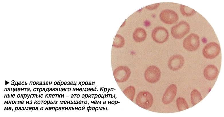 Здесь показан образец крови пациента, страдающего анемией
