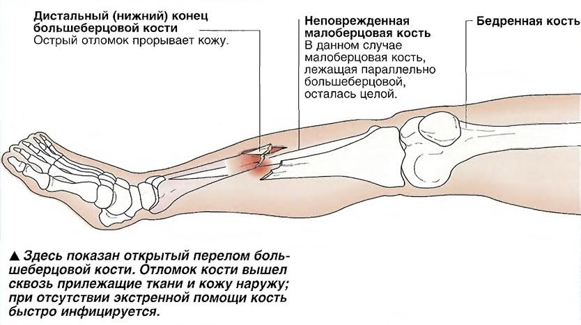 Здесь показан открытый перелом большеберцовой кости