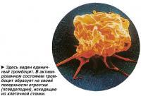 Здесь виден единичный тромбоцит
