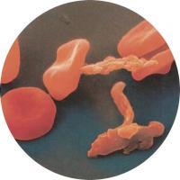 Здоровые эретроциты имеютют красный цвет. больные малярией — коричневый