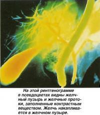Желчный пузырь и желчные протоки, заполненные контрастным веществом