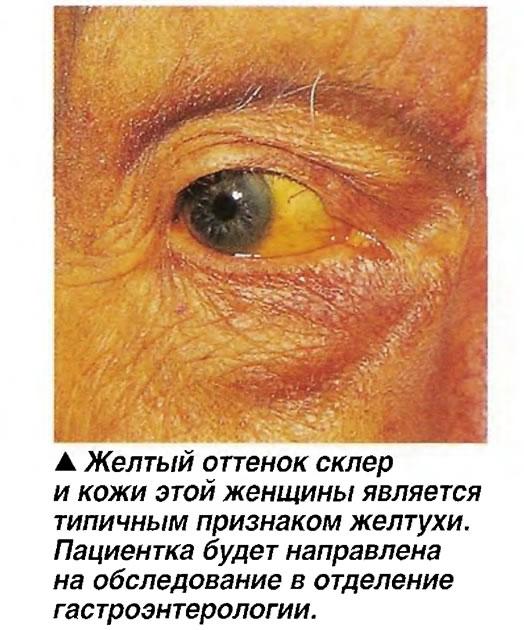 Желтый оттенок склер и кожи этой женщины является типичным признаком желтухи