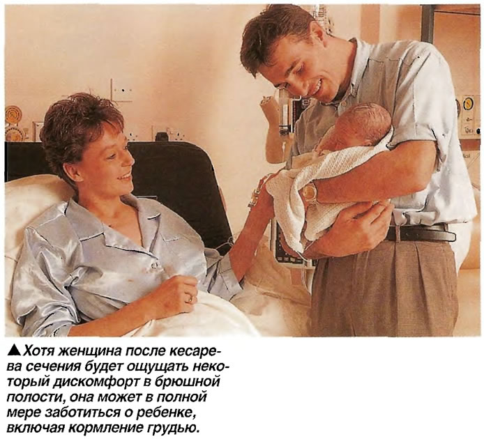 Женщина после кесарева сечения будет ощущать некоторый дискомфорт в брюшной полости