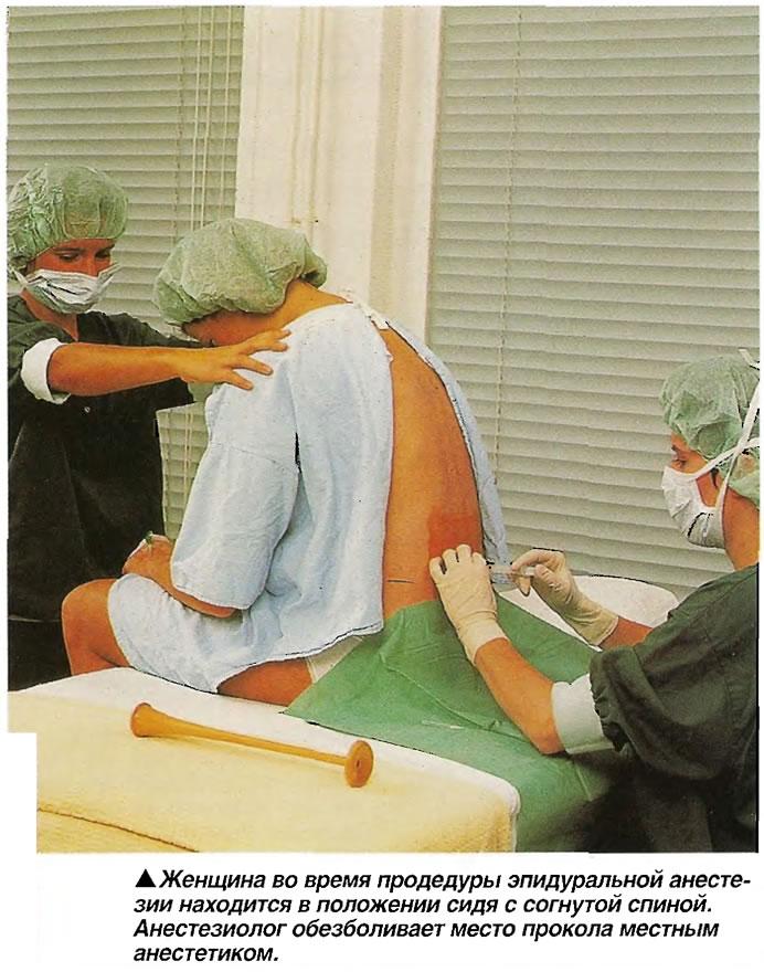 Женщина во время продедуры эпидуральной анестезии находится в положении сидя с согнутой спиной