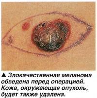 Злокачественная меланома обведена перед операцией