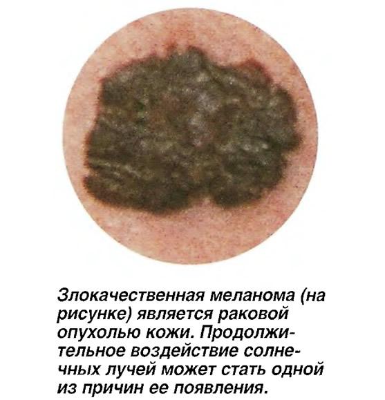 Злокачественная меланома является раковой опухолью кожи