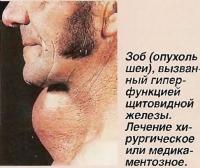 Зоб (опухоль шеи), вызванный гиперфункцией щитовидной железы
