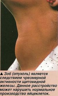 Зоб (опухоль) является следствием чрезмерной активности щитовидной железы