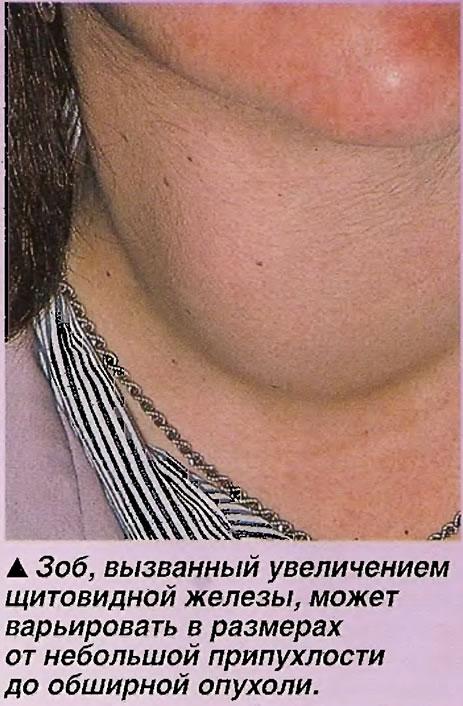 Зоб, вызванный увеличением щитовидной железы