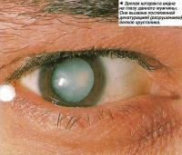 Зрелая катаракта видна на глазу данного мужчины