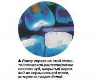 Зуб, накрытый коронкой из нержавеющей стали