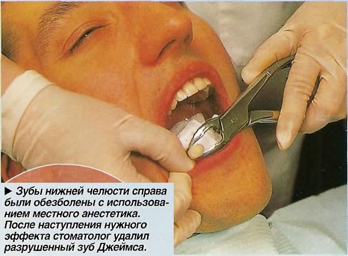 Зубы нижней челюсти справа были обезболены с использованием местного анестетика